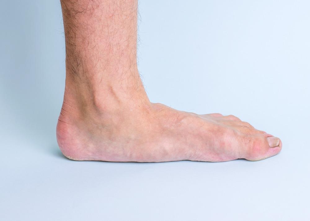 posterior tibial tendon dysfunction